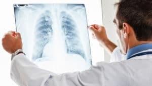 Льготы, пенсия и права больных туберкулезом в 2018 году: что положено, порядок оформления и условия получения, инвалидность, новости, законы